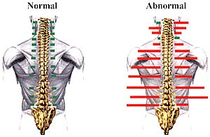 Chiropractic Spinal Evaluation